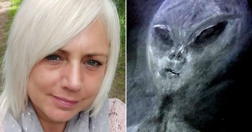Gran says she's been abducted by ­aliens 50 times – and has bruises to prove it