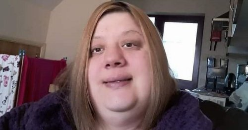Woman who drank 15 cans of cola and ate takeaway every day drops incredible 18st