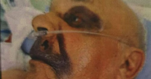 Man, 77, left with black eye after thugs raid his home and drag him out of bed