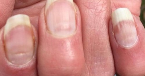 'Covid nails' could be sign you had coronavirus before, warns scientist