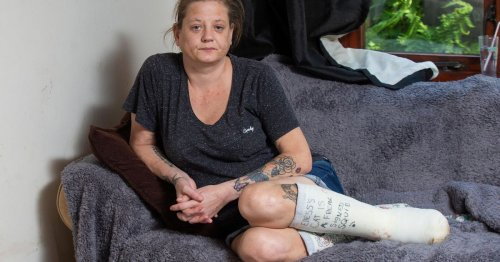Chef begs for 9 toes to be amputated after losing one slipping on wet step