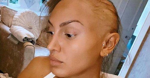 Ex On The Beach star ZaraLena Jackson undergoing alopecia treatment
