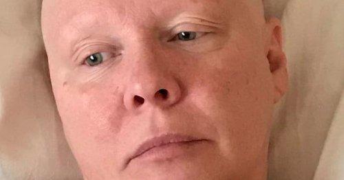 Breast cancer survivor left bald after botched £18,000 reconstruction implants