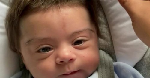 Medicine side effect gives newborn baby luscious full head of hair
