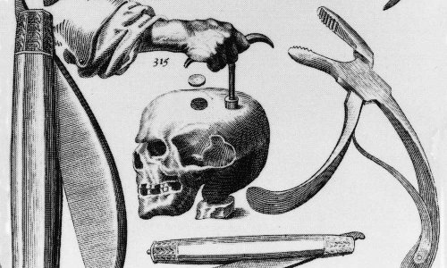 A Hole in the Head: A Complete History of Trepanation