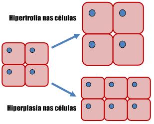 Hipertrofia muscular x Hiperplasia muscular – Qual é a diferença?