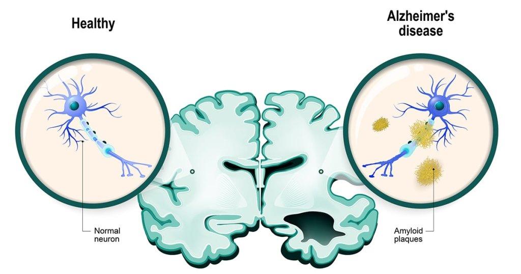 Anti-Alzheimer - cover