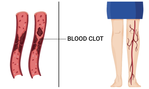10 Early Warning Symptoms of a Blood Clot You Should Never Ignore - My Nutri Plans