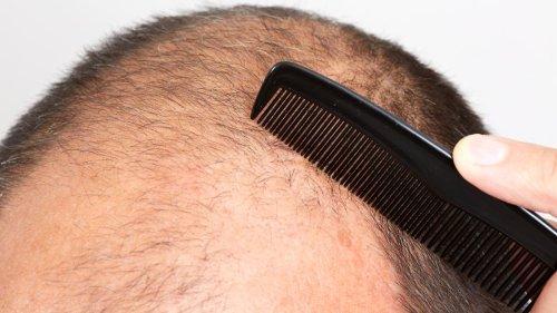 Haarausfall - erblich bedingt oder nicht?