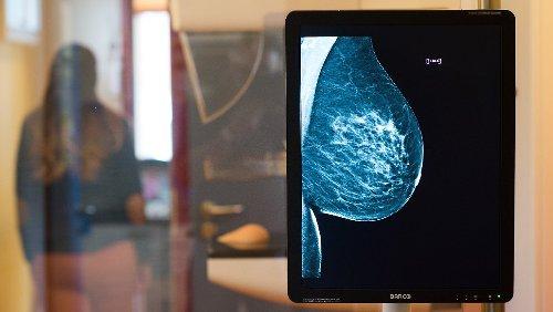 Was ist die beste Brustkrebs-Früherkennung?
