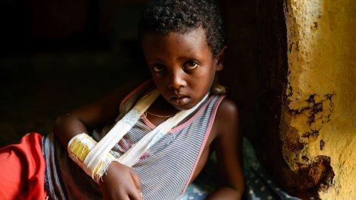 Tigray droht Masern- und Polio-Epidemie