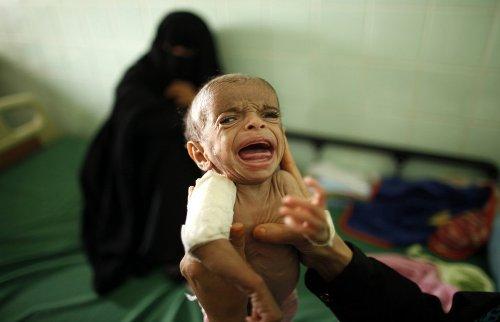 Bearing Witness To Crisis In Yemen