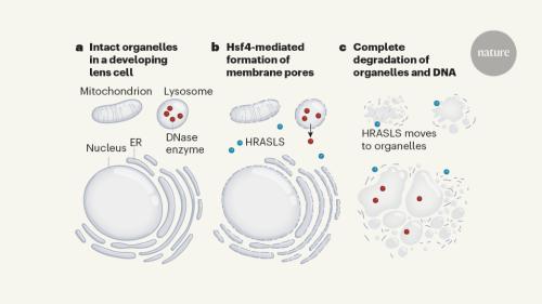 Lipid dismantling of lens organelles for clear vision
