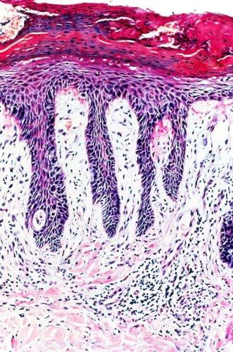 Psoriasis illuminates a path for immunologic advances