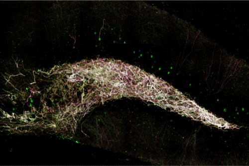 How Sleep Loss Sabotages New Memory Storage in the Hippocampus - Neuroscience News