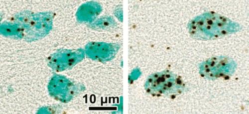 Transporter Imbalance Implicated in Schizophrenia - Neuroscience News