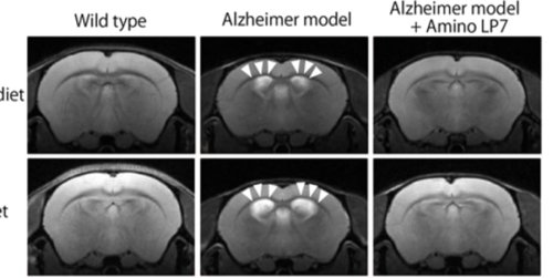 Low Protein Diets Could Accelerate Dementia but Amino Acids Can Slow the Progress - Neuroscience News