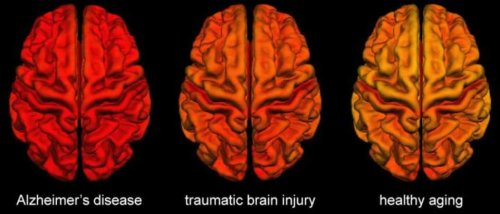 Brain Changes Following TBI Share Similarities With Alzheimer's Disease - Neuroscience News