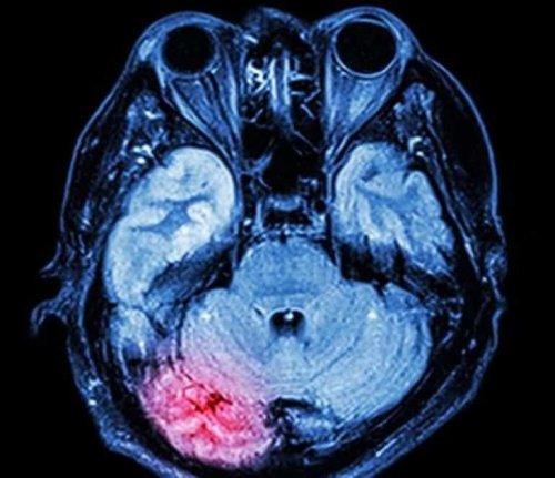 New Drug to Halt Dementia After Multiple Head Injuries - Neuroscience News