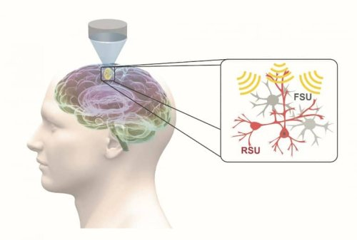 Focused Ultrasound Enables Precise Noninvasive Therapy - Neuroscience News