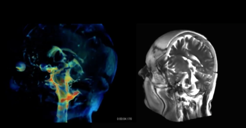 New imaging tech offers incredibly detailed 3D videos of pulsating brains