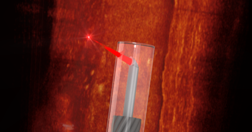 World's smallest imaging device can 3D-scan inside your blood vessels