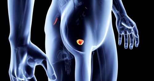 AI tool analyzes CT scans to spot prostate cancer in seconds