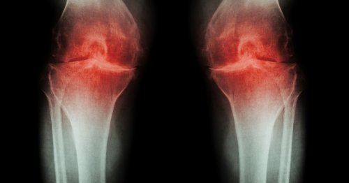 Joint cartilage regrown in arthritic mice by a stem cell tweak