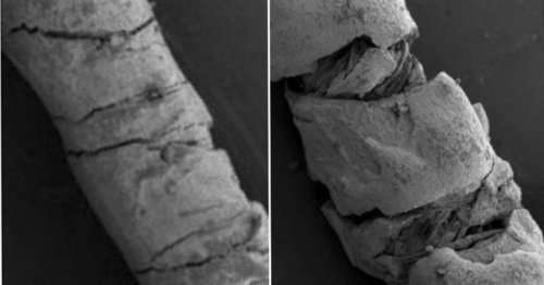 Conductive threads on skin track body movement