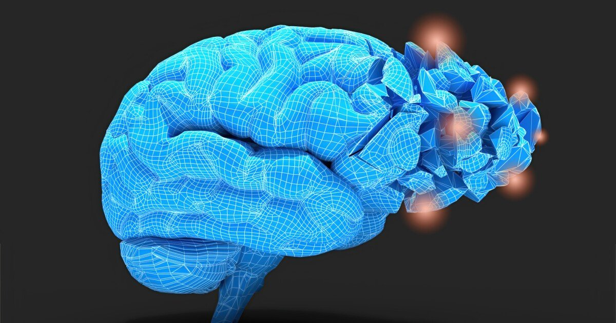 IBD and obesity affirmed as serious dementia risk factors