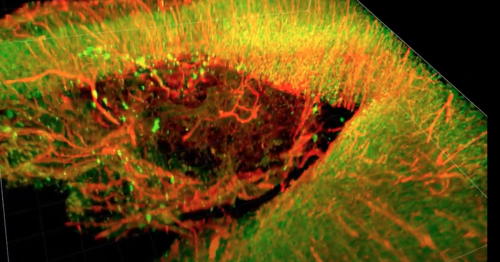 """""""Brain glue"""" protects tissue and repairs neurons after traumatic injury"""