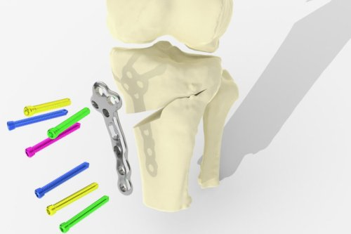 3D-printed plate could make for better, quicker arthritic knee surgery