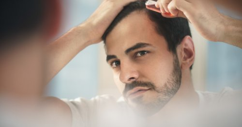 Maintaining stem cell stickiness could be the key to battling baldness