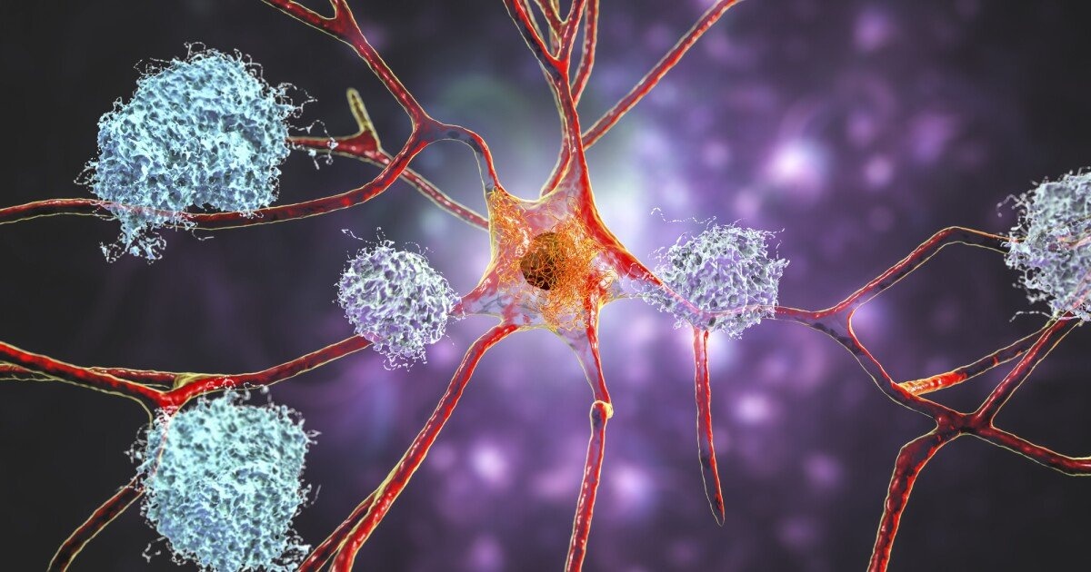 First new Alzheimer's drug in decades receives controversial FDA approval