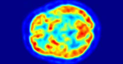 Deep learning algorithm detects Alzheimer's up to six years before doctors