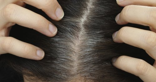 Stress study shows graying hair is reversible