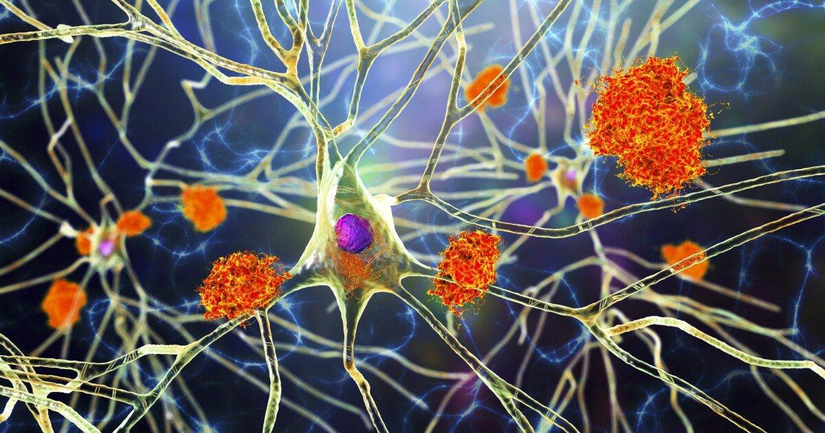 Landmark study presents evidence Alzheimer's disease begins in the liver
