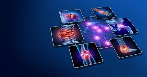 Rheumatoid arthritis linked with gut bacteria imbalance