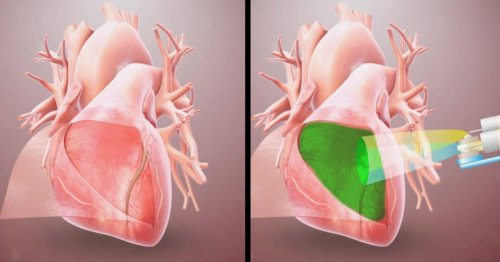Hydrogel for the heart may prevent a common post-surgical complication