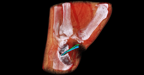 3D color X-ray machine heads for trials