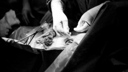 Diagnose nekrotisierende Fasziitis: Mutter verrottet nach Kaiserschnitt bei lebendigem Leib