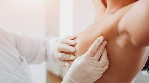 Krebs-News aktuell: Neues Wundermittel? Kann dieses Medikament Brustkrebs heilen?