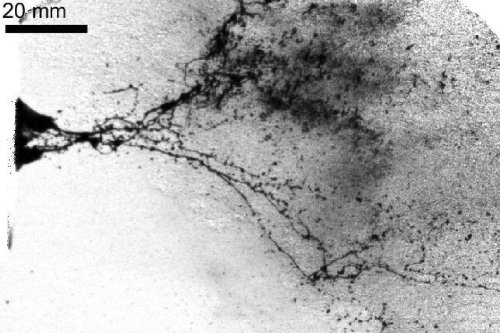 Explosive gas from a gun can mask crime scene blood spatter patterns
