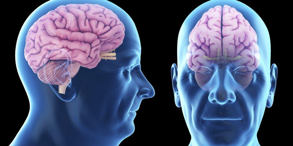 Brain Health - cover