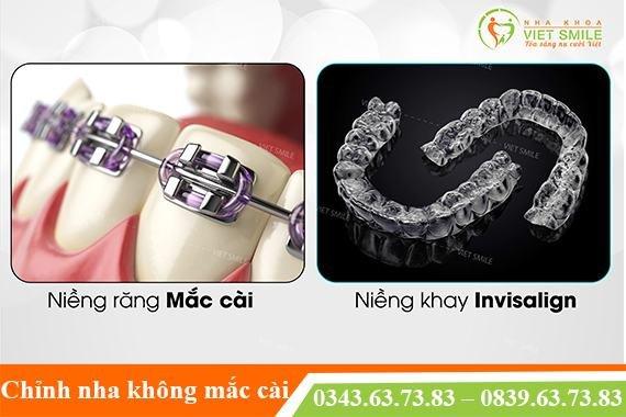 https://nhakhoavietsmile.com/bang-gia-va-chi-phi-nieng-rang-moi-nhat-2021/ - cover
