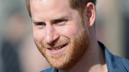 The Truth About Prince Harry's Hair Loss