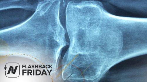 Flashback Friday: Sesame Seeds for Knee Osteoarthritis   NutritionFacts.org