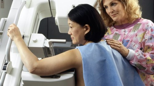 90% ofWomen Appear MisinformedAbout Mammograms