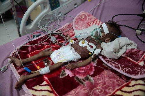 UN warns COVID-19 is 'roaring back' as Yemen faces famine
