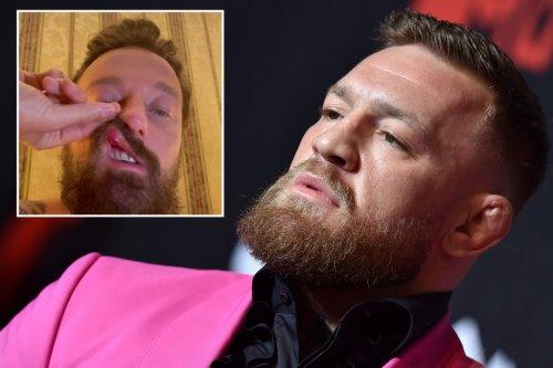 Conor McGregor accused of punching, breaking Italian DJ's nose in Rome